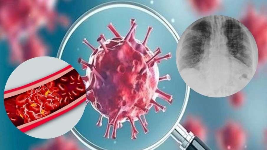 कोविड-19 महज फेफड़े की बीमारी नहीं है, इससे खतरनाक तरीके से खून का थक्का भी जम सकता है: विशेषज्ञ